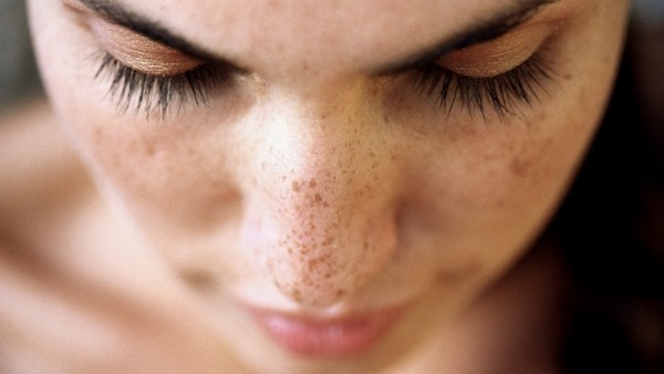HOW TO REDUCE DARK SPOTS